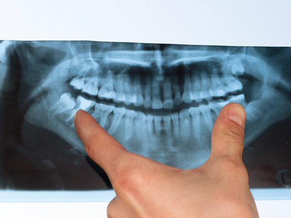 Scared of Radiation Exposure? Ways Dentists Are Reducing Patient Exposure