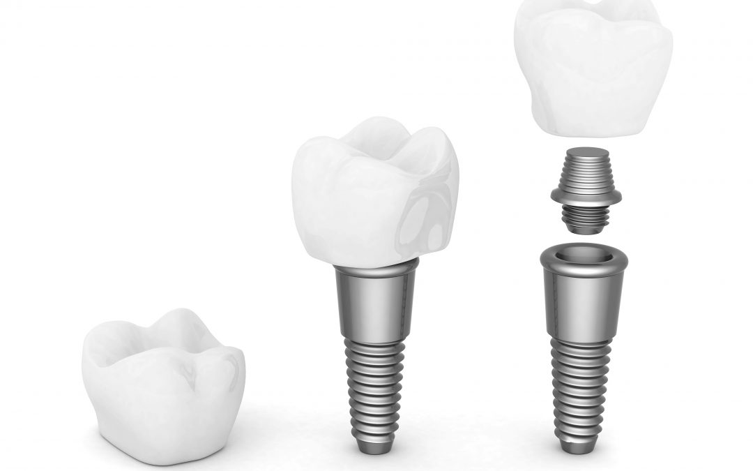 Home Care for Your Dental Implants