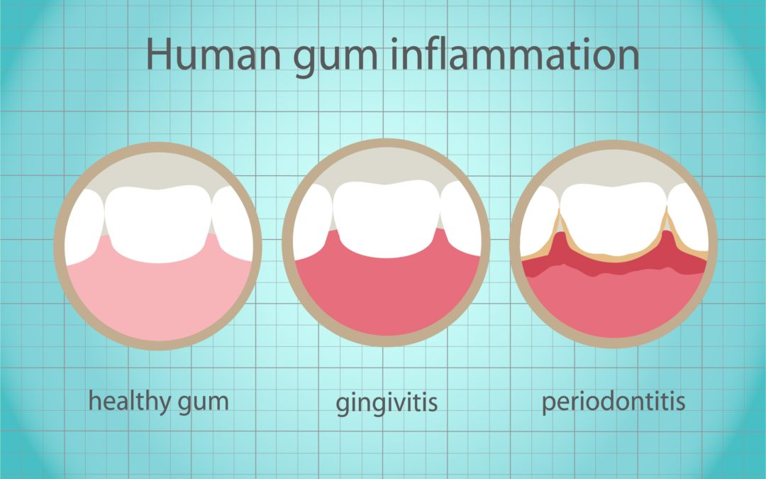 Gum Disease Can Devastate Your Smile